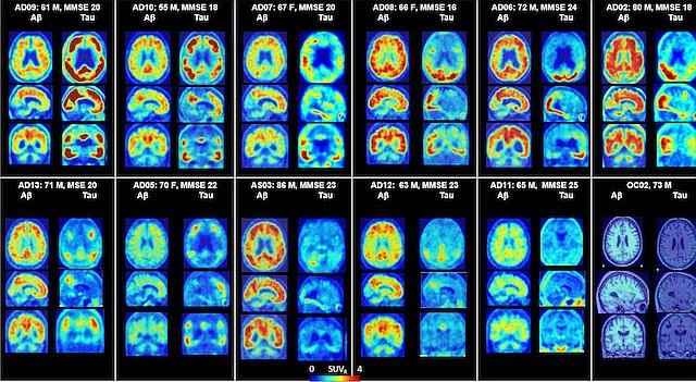 Cortesia: Johns Hopkins Medicine