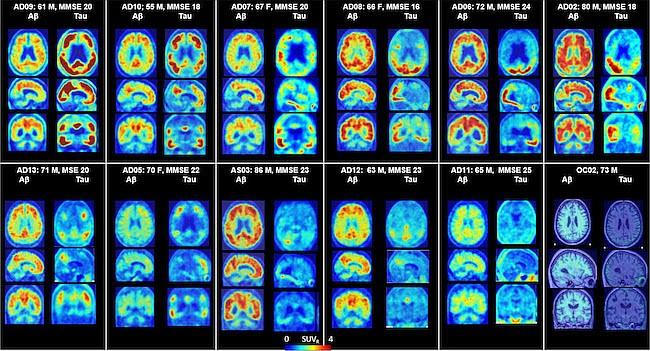 Johns Hopkins identifica técnica prometedora para diagnóstico de Alzheimer