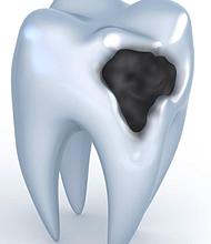 DAÑO. Si el diente no se limpia o protege, el esmalte con el tiempo se corroe, lo que resulta en la pérdida de la estructura dental.