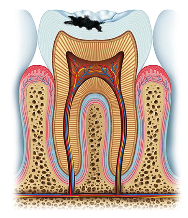 CARIES. Si usted no tiene tiempo suficiente para cepillarse los dientes, se aconseja que se enjuague la boca después de las comidas.