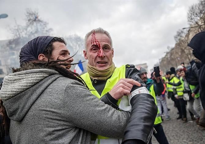 """Integrante de """"chalecos amarillos"""" pierde una mano durante protesta en París"""