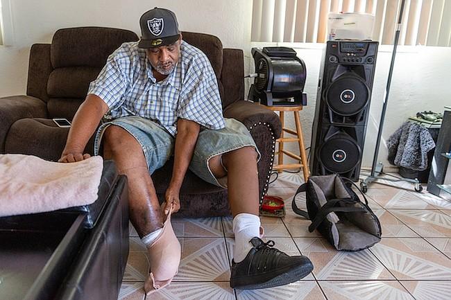 Jackson Moss perdió parte de su pie derecho por una complicación de la diabetes. Trata de salvar el resto con la ayuda de su esposa, Bernadette.