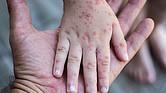 CONTAGIO. Los casos reportados de sarampión están conectados con personas que no fueron vacunadas contra ese mal y que regresaban a territorio continental estadounidense desde el extranjero.