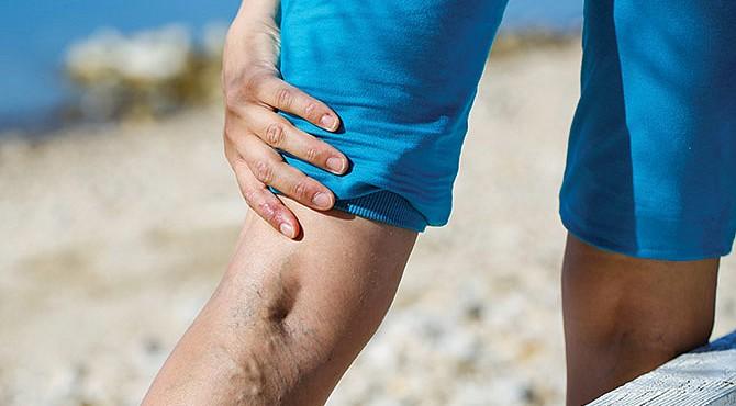 Importante. Las várices se presentan tanto en mujeres como en hombres. Un mal diagnóstico podría traer complicaciones.