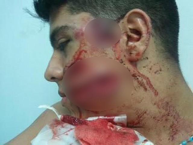 REPRESIÓN. Efectivos de seguridad del régimen de Maduro dispararon cinco perdigones a la cara y tres a la espalda de Vásquez en una protesta en 2013. *Esta foto ha sido publicada con la autorización de la víctima. | Foto cortesía.