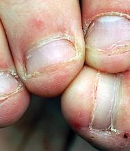 DAÑINO. Comerse las uñas puede parecer un hábito inofensivo, sin embargo, causaría fiebre, diarrea e incluso es potencialmente mortal.