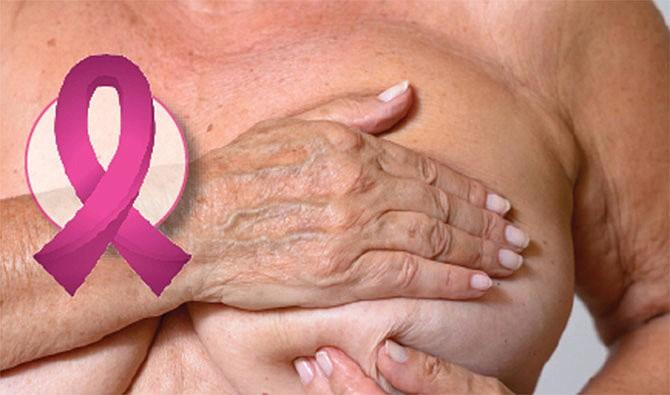 Enfrentando el cáncer  de seno con esperanza