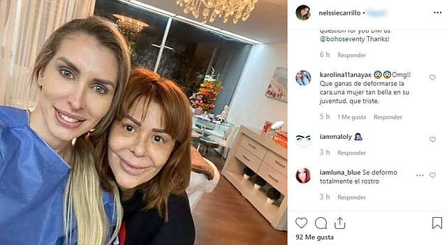 SHOW. Alejandra Guzmán vuelve al quirófano para cambiar la apariencia de su rostro