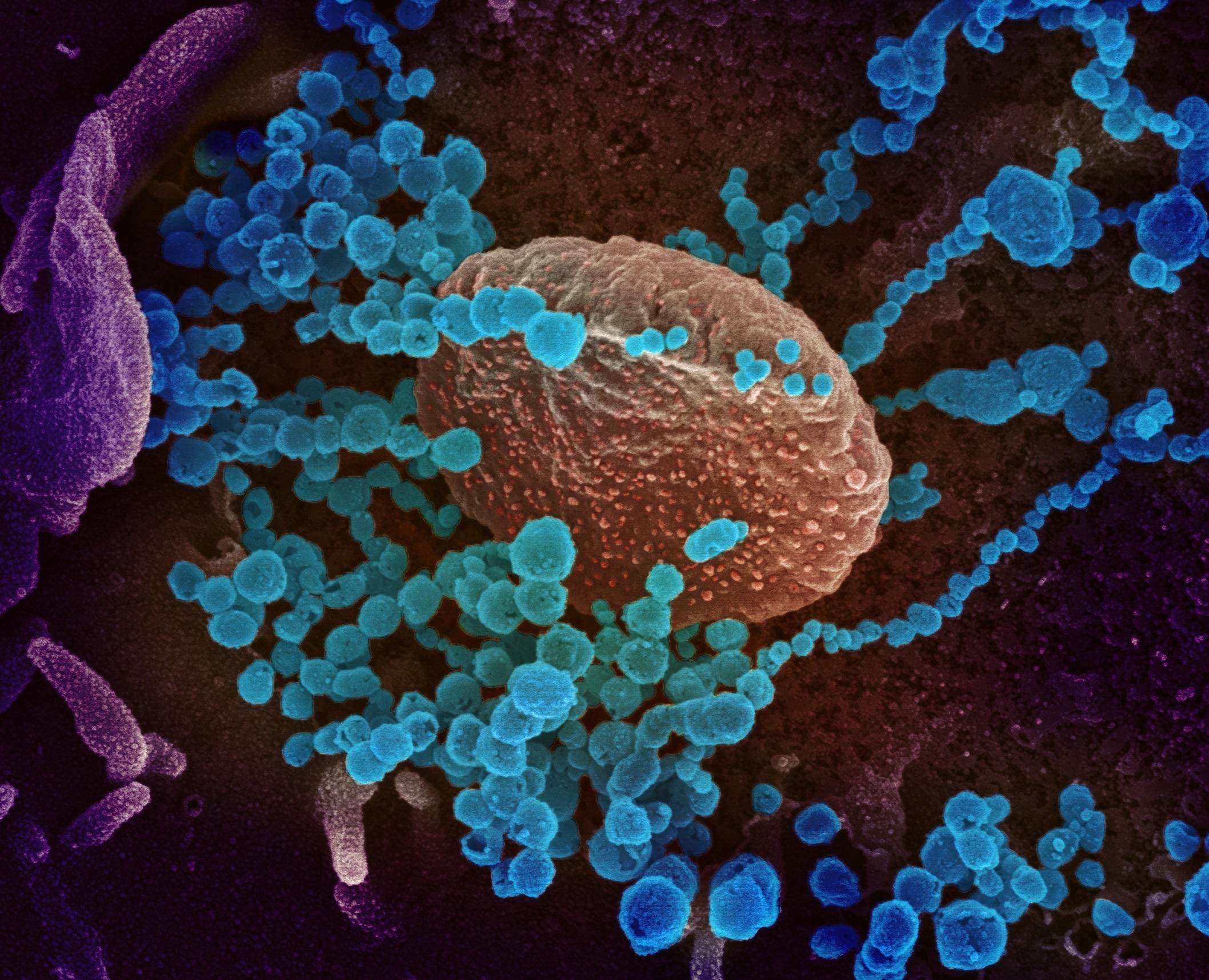 SALUD. Fotografía cedida por el Instituto Nacional de Alergias y Enfermedades Infecciosas y los Laboratorios Rocky Mountain de una imagen de microscopio electrónico que muestra (objetos en azul) al SARS-CoV-2, el virus que causa el brote del coronavirus COVID-19, emergiendo de la superficie de las células cultivadas en el laboratorio. | Foto: Efe.