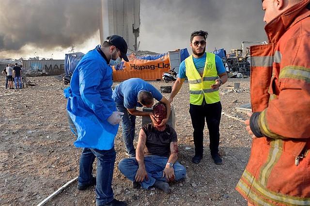 EXPLOSIÓN. Trabajadores de rescate ayudan a un hombre herido en el lugar de la explosión en el puerto de Beirut, Beirut, Líbano, 4 de agosto de 2020