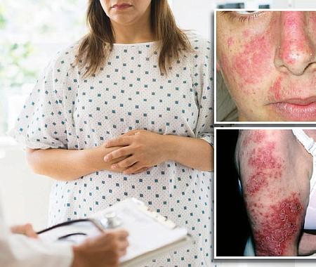 EXPECTATIVA. El lupus no es bacteria, virus, hongo o parásito, por lo que su contagio no es posible y menos por la vía sexual. La supervivencia de los pacientes con lupus es del 90% a los veinte años de ser diagnosticados.