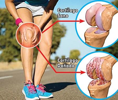 OSTEOARTROSIS. Los especialistas recomiendan no esperar a que se presenten los primeros signos de dolor para prevenir esta enfermedad.