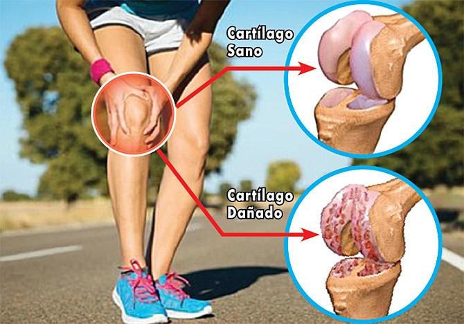 Las dolorosas secuelas de la osteoartrosis